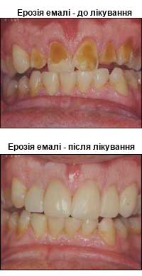erozia2
